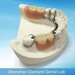 Dental CCP supplier Metal casting framework