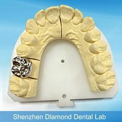 Dental Full metal crown/FCC Denture supplier