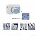 Digital X-Ray Machine Portable Dental X Ray Unit High Quality Imaging System 1