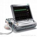 fetal monitor CTC machine