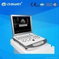 laptop color doppler ultrasound scanner DW-C60 PLUS
