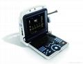 4D Portable Color Doppler Ultrasound Scanner (K6)