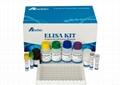 人天冬氨酸转氨酸(AST)ELISA Kit 4