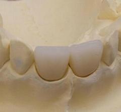 Dental porcelain teeth
