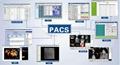 e院通Mini PACS系统