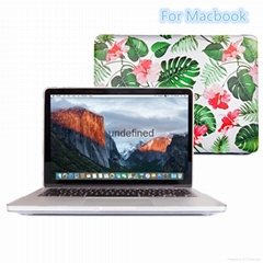 "Apple Macbook Air 11 ""13 and so on. Pro Retina new gold saffron rubber case"