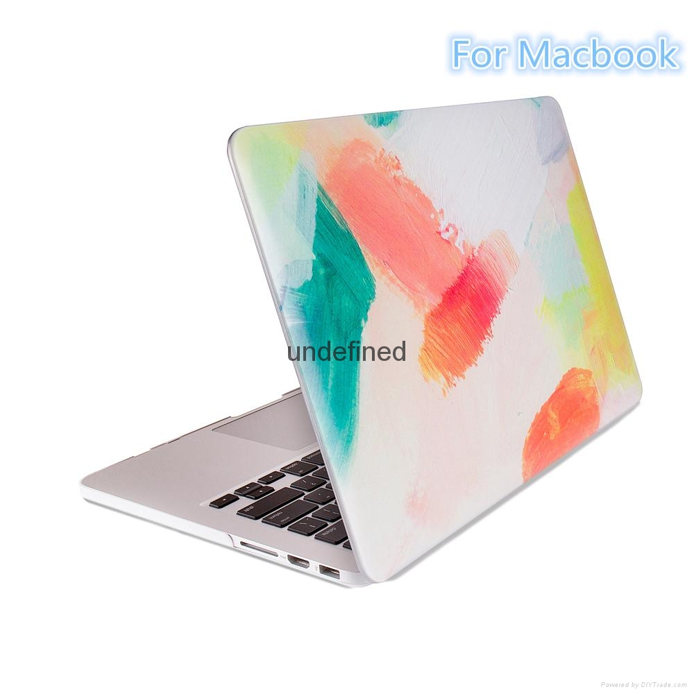 For Macbook High Quality Case  New Design Cover  3