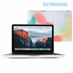 For Macbook High Quality Case  New Design Cover