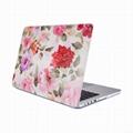 Macbook Pro New Crystal Transparent Rose Hard Case 12.13 Inch Laptop Bag 4