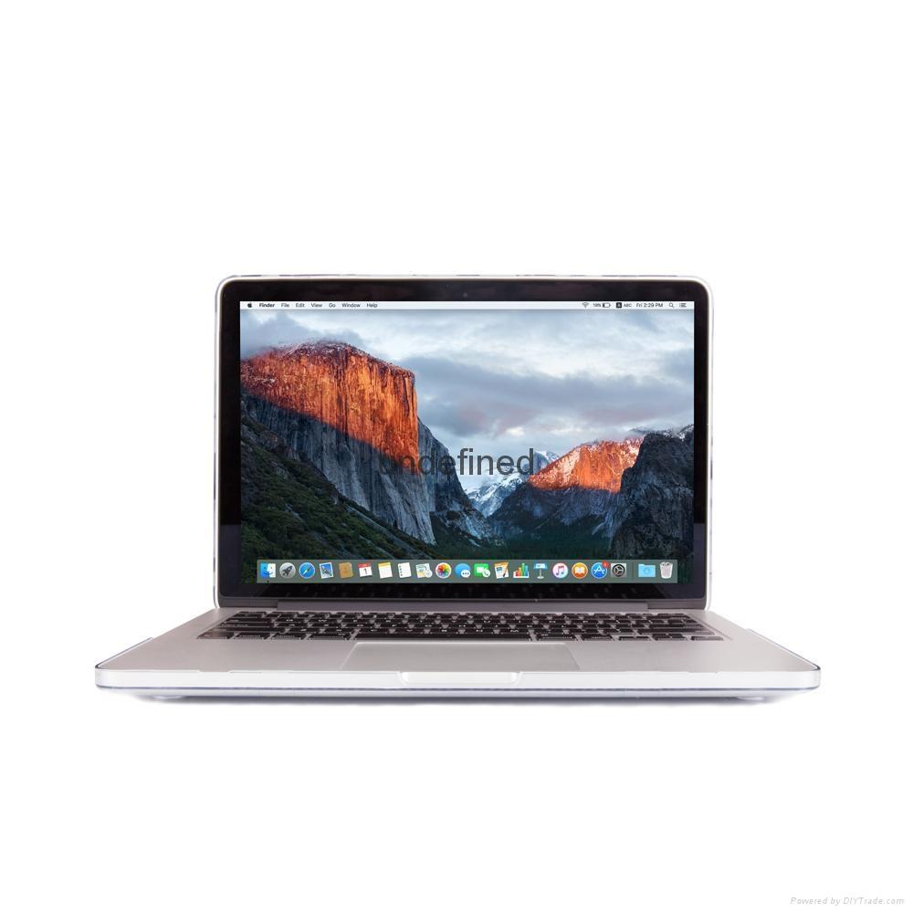Macbook Pro New Crystal Transparent Rose Hard Case 12.13 Inch Laptop Bag 2