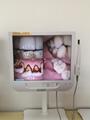 Dental Oral Camera