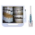 17inch Monitor Dental Endoscrope