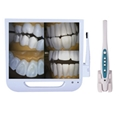 17inch Monitor Dental Endoscrope Integrated Intraoral Camera
