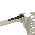 肱骨近端鎖定接骨板Ⅲ型
