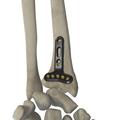 桡骨远端掌侧关节外锁定接骨板(头 5 孔)