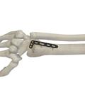 桡骨远端背侧锁定板斜 L 型