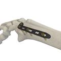 桡骨远端背侧锁定板小 L 型