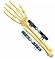 Wrist Joint Fixator