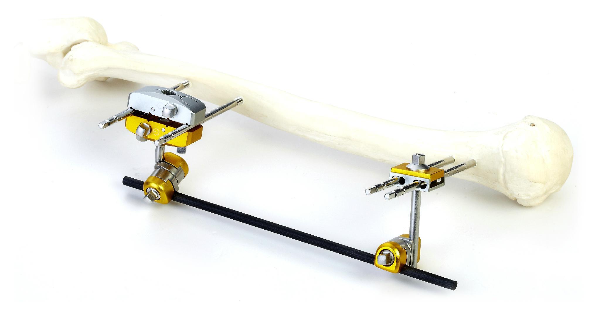 SK Combined External Fixator(Small Bone) 2