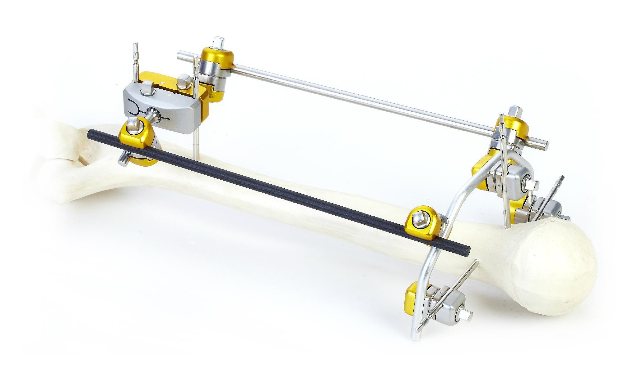 SK Combined External Fixator(Small Bone) 3