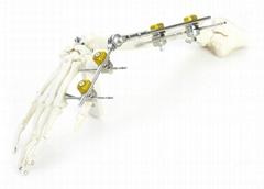 SK组合式外固定支架(上肢系列)