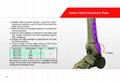 中空形胫骨截骨矫形板