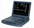 4D Laptop Color Doppler Ultrasound System ZERO-C60