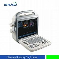 Popular portable Color doppler Ultrasound scanner