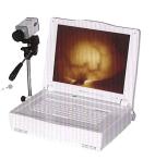 JW-2102紅外乳腺診斷儀