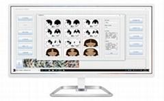 毛囊检测仪(毛发检测仪, 毛囊分析系统, 毛发分析系统)