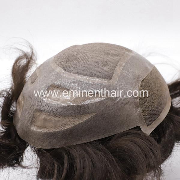 Fine Mono Stock Hair Replacement 1
