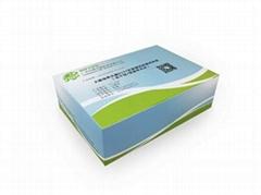 大肠埃希氏菌O157抗原基因检测试剂盒恒温荧光法