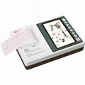 Veterinary ECG Machine