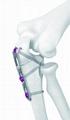 Olecranon Locking compression hook bone plate