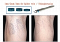 Effective Treatment of Leg Vein Telangiectasia with a New 940 nm Diode Laser