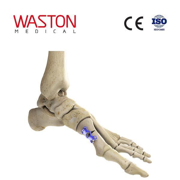中空形蹠骨基底截骨板 骨科 植入物 足部 矯正器械 鏈接 截骨朮     1