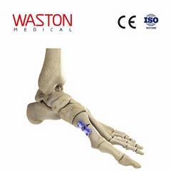 中空形蹠骨基底截骨板 骨科 植入物 足部 矯正器械 鏈接 截骨朮