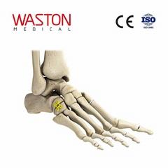 中空形骰骨截骨矯形板 骨科 植入物 足部 矯正器械 鏈接 截骨朮