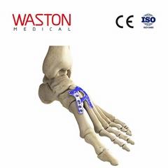 lisfrance 橋式、融合板 骨科 植入物 足部 矯正器械 鏈接 截骨朮