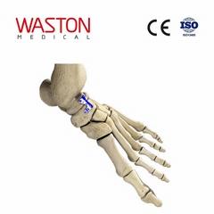 距舟融合板 骨科 植入物 足部 矫正器械 链接 截骨术