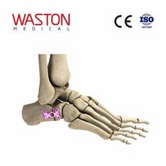 中空形跟骨截骨板 骨科 植入物 足部 矫正器械 链接 截骨术