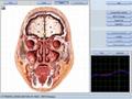 西班牙语版本矢量8D LRIS NLS全身细胞分析仪扫描设备 17