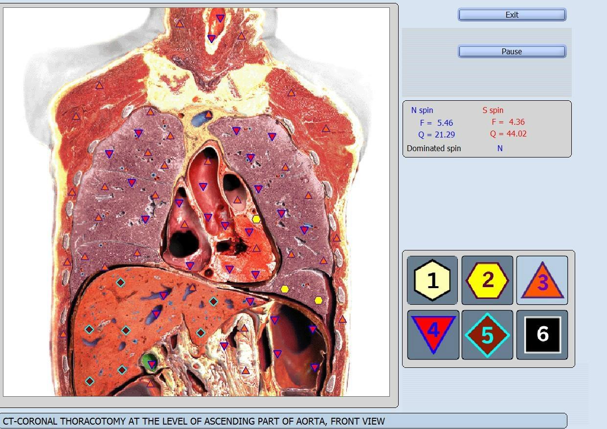 西班牙语版本矢量8D LRIS NLS全身细胞分析仪扫描设备 19