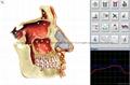 塔特隆獵人NLS系統4025生物共振健康掃描和治療 3
