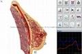 塔特隆獵人NLS系統4025生物共振健康掃描和治療 4