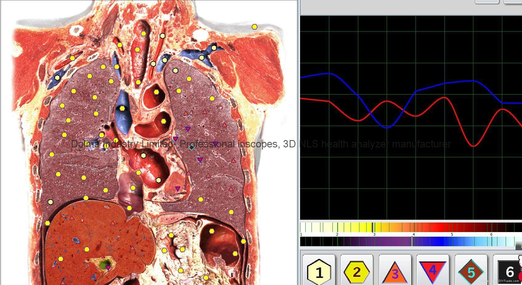 塔特隆獵人NLS系統4025生物共振健康掃描和治療 7