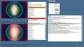 2014年生物共振掃描儀8D LRIS NLS IRIS- NLS量子健康分析儀機 9