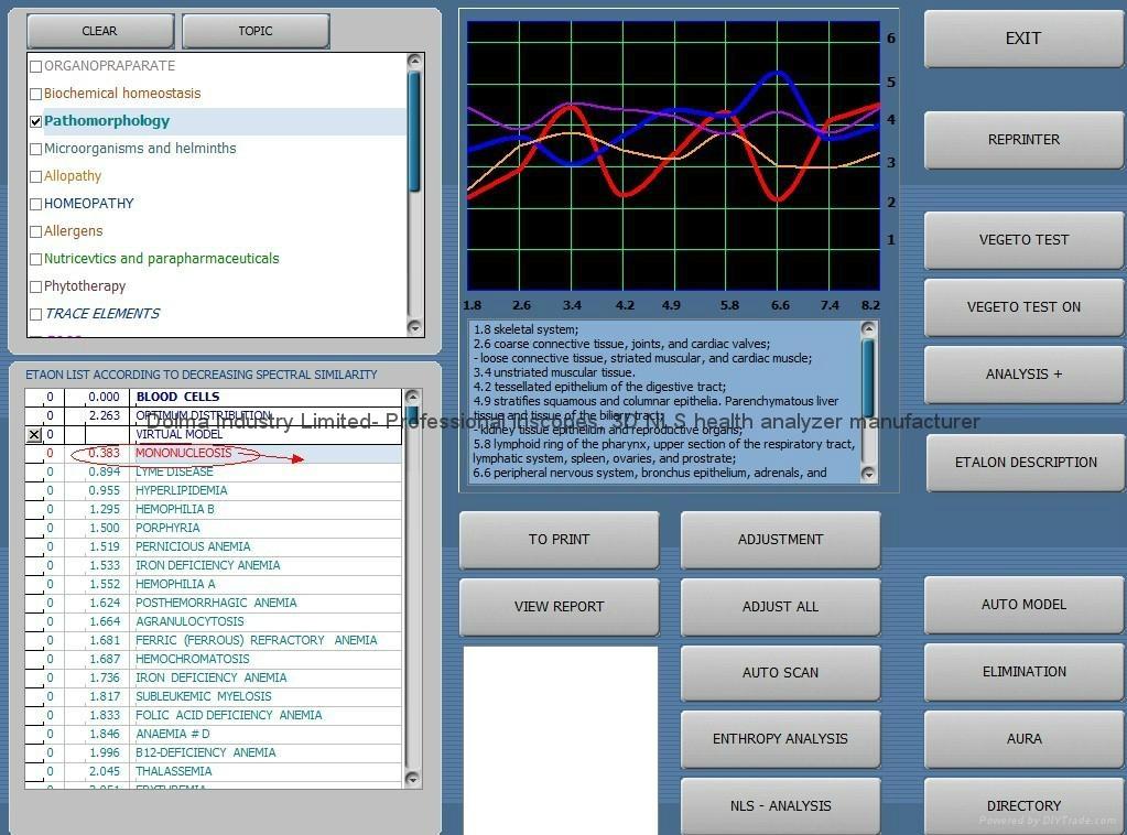 2014年生物共振掃描儀8D LRIS NLS IRIS- NLS量子健康分析儀機 11