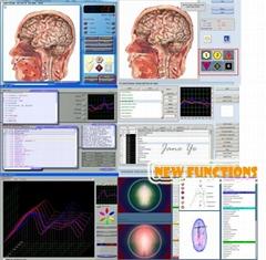 生物共振技術狀況分析器8D NLS