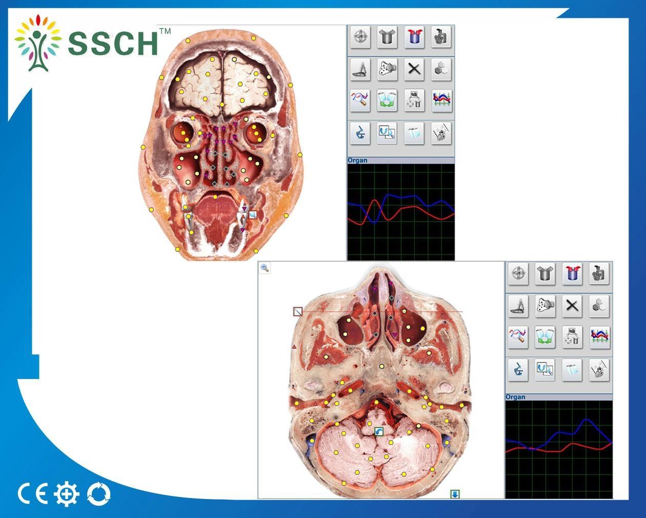 塔特隆獵人NLS系統卓瑪4025*生物共振健康掃描和治療 1